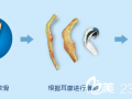 先天小耳畸形的再造时机选择及治疗方式