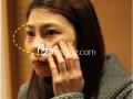 黑眼圈能通过眼底脂肪重新排列去除吗?