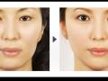 下颌角整形 女孩下颌角整形安全吗?