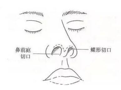 鼻综合手术会将鼻部结构整体进行调整,采用多项不同的手术方法