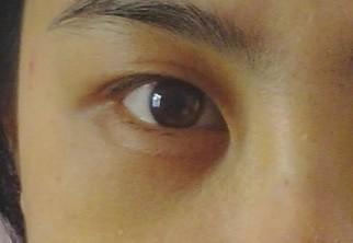 我的黑眼圈一直都很重,每天像被人打过,太烦恼,真的很想把这