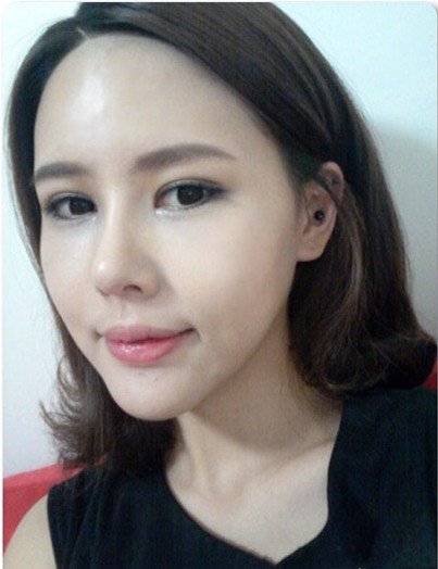 沈阳市百嘉丽医疗美容医院埋线法双眼皮、硅胶隆鼻整形