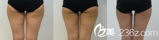 我的大腿很肥,一直很想减掉,但凭自己的毅力貌似是不可能的