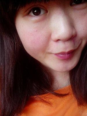 前几年开始,我的脸就总是红红的,就好像被风刮伤了一样,脸