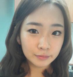 【瘦脸手术】我的变美体验,下颌角部位进行改善。