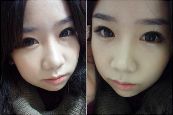 韩国原辰双鄂手术,让我拥有了精致的小脸型  我的脸型有点长,