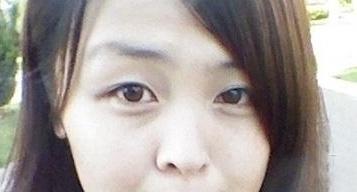 小时候就知道自己的脸跟别人的不一样的,大小眼很严重,左边