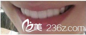 牙齿是一个人的门面,就好比家里的大门一样,如果难看会严重