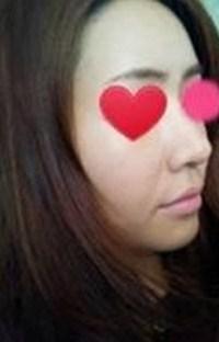 心路历程:    这是我手术前的照片,我的鼻头肉多,鼻翼