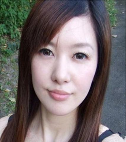 心路历程:我脸上的斑不能说很严重,不过就是有点影响视