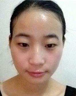 一年前,在我还没有做光子美白的时候,我的皮肤又黑又差,还
