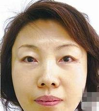 我相信有没有一个女人会喜欢自己的脸上有皱纹的,我也不例外