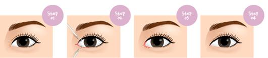 开内眼角治疗方法手术示意图