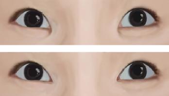 开内眼角治疗效果图