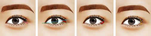 开外眼角治疗方法手术示意图