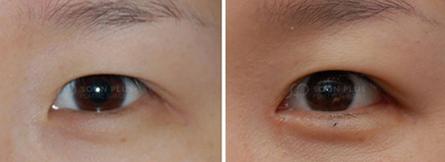开外眼角治疗效果图