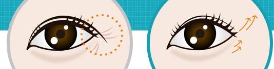 外眼角提升治疗方法手术示意图