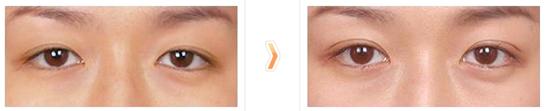 外眼角提升治疗效果图