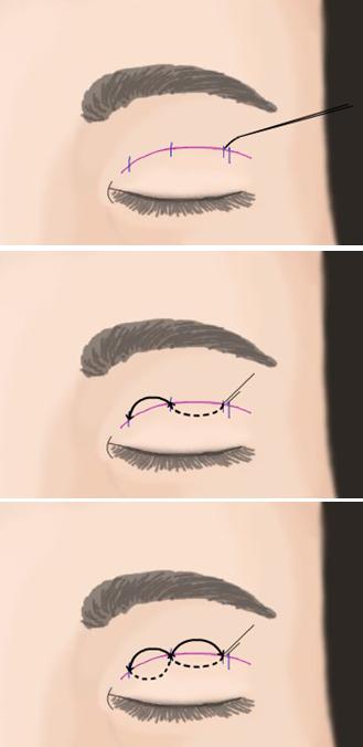 埋线法双眼皮治疗方法手术示意图