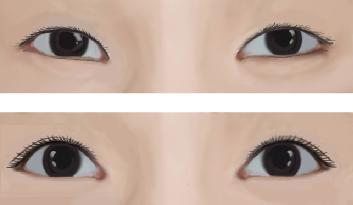 埋线法双眼皮治疗效果图