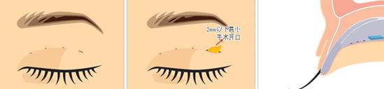 部分切开法双眼皮治疗方法手术示意图