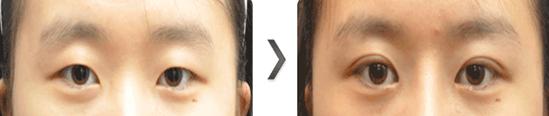 部分切开法双眼皮治疗效果图