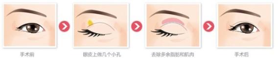 切开法双眼皮治疗方法手术示意图