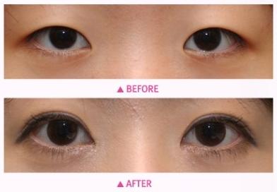 切开法双眼皮治疗效果图