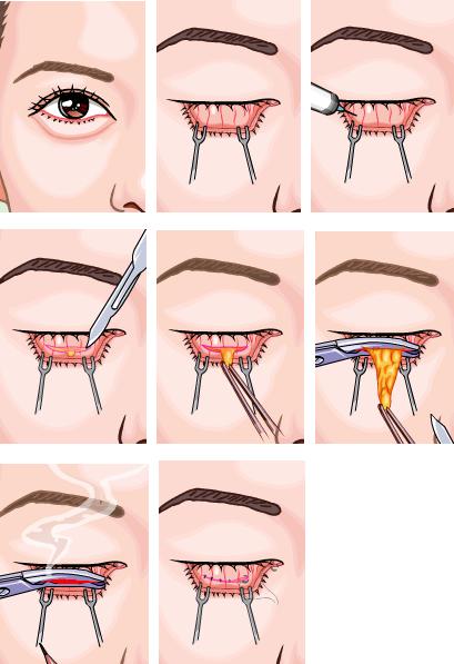 外切法去眼袋治疗方法手术示意图