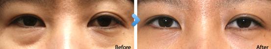 外切法去眼袋治疗效果图