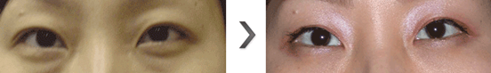 内切法去眼袋治疗效果图