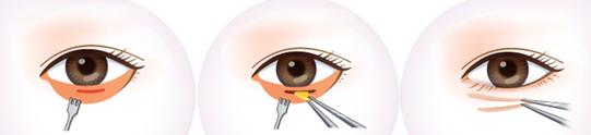 眼底脂肪重新排列去黑眼圈治疗方法手术示意图