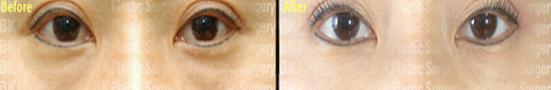 眼底脂肪重新排列去黑眼圈治疗效果图