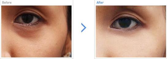 激光去黑眼圈治疗效果图