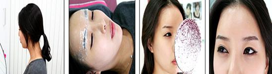 纹眉治疗方法手术示意图
