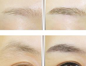 纹眉治疗效果图