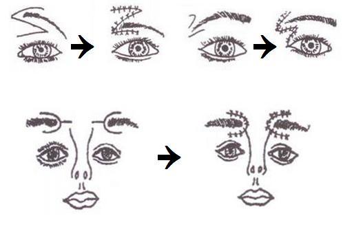 切眉术治疗方法手术示意图
