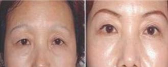 切眉术治疗效果图