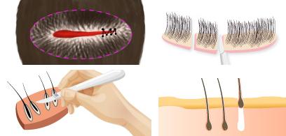 种植睫毛治疗方法手术示意图