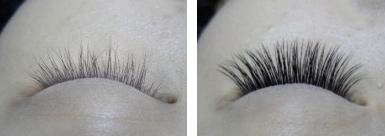 种植睫毛治疗效果图
