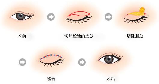 眼皮下垂矫正治疗方法手术示意图