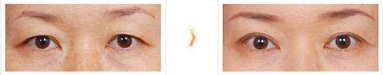 眼皮下垂矫正治疗效果图
