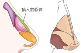 膨体隆鼻治疗方法手术示意图