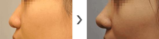 膨体隆鼻治疗效果图