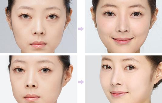 硅胶隆鼻治疗效果图