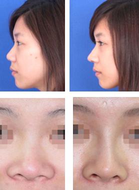 自体软骨隆鼻治疗效果图