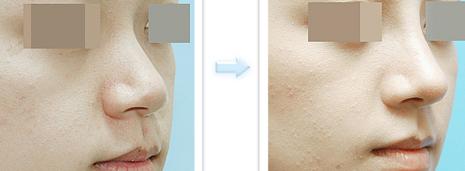 注射隆鼻治疗效果图