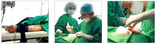 埋线隆鼻治疗方法手术示意图