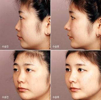 埋线隆鼻治疗效果图