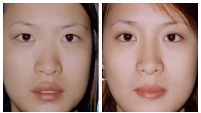 自体脂肪隆鼻治疗效果图